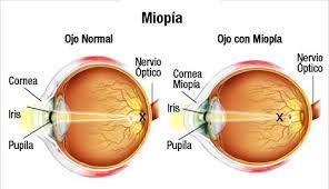 Occhio_Normale_Occhio_affetto_da_Miopia-2