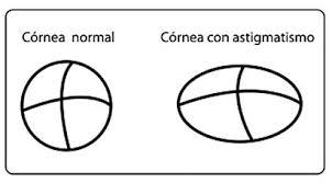 Astigmatismo_Corneale_problemi_visivi