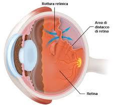 Distacco_di_Retina_patologie_oculari.jpg