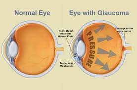 Glaucoma_patologie_oculari.jpg