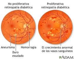 Retinopatia_Diabetica_patologie_oculari.jpg